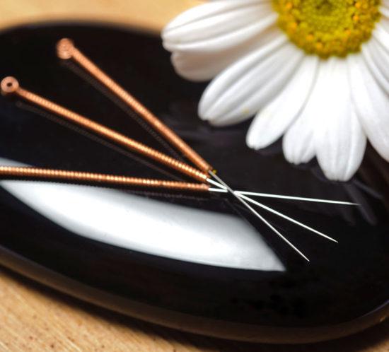 austin-expecting-acupuncture-catalyst-labor-SQ785